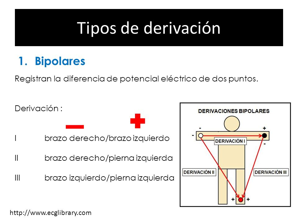 Tipos de derivación Bipolares Monopolares Precordiales