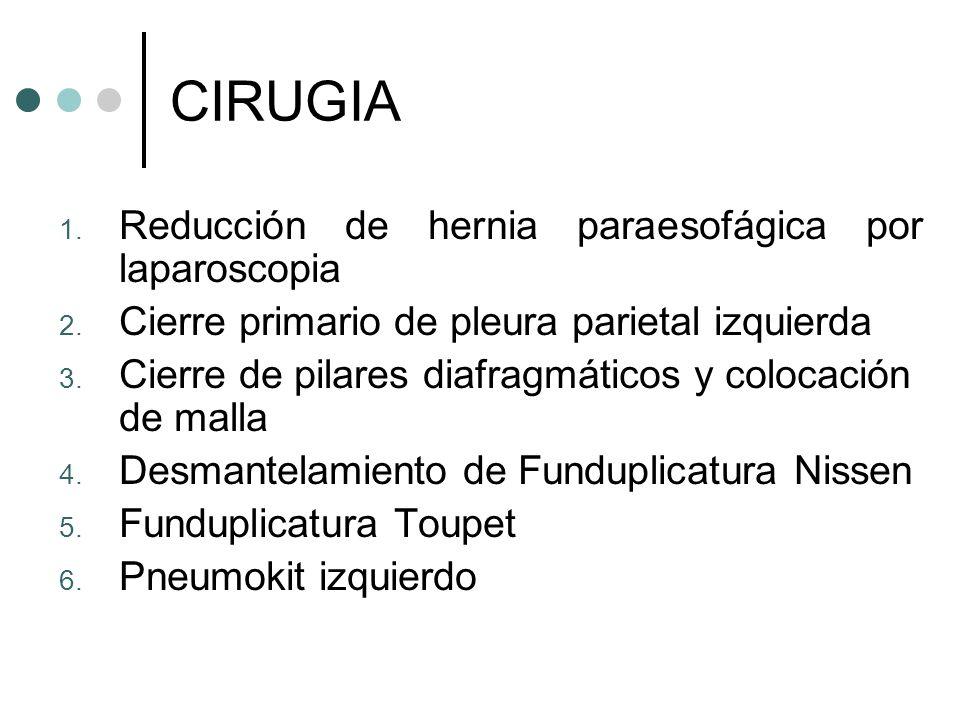 CIRUGIA Reducción de hernia paraesofágica por laparoscopia