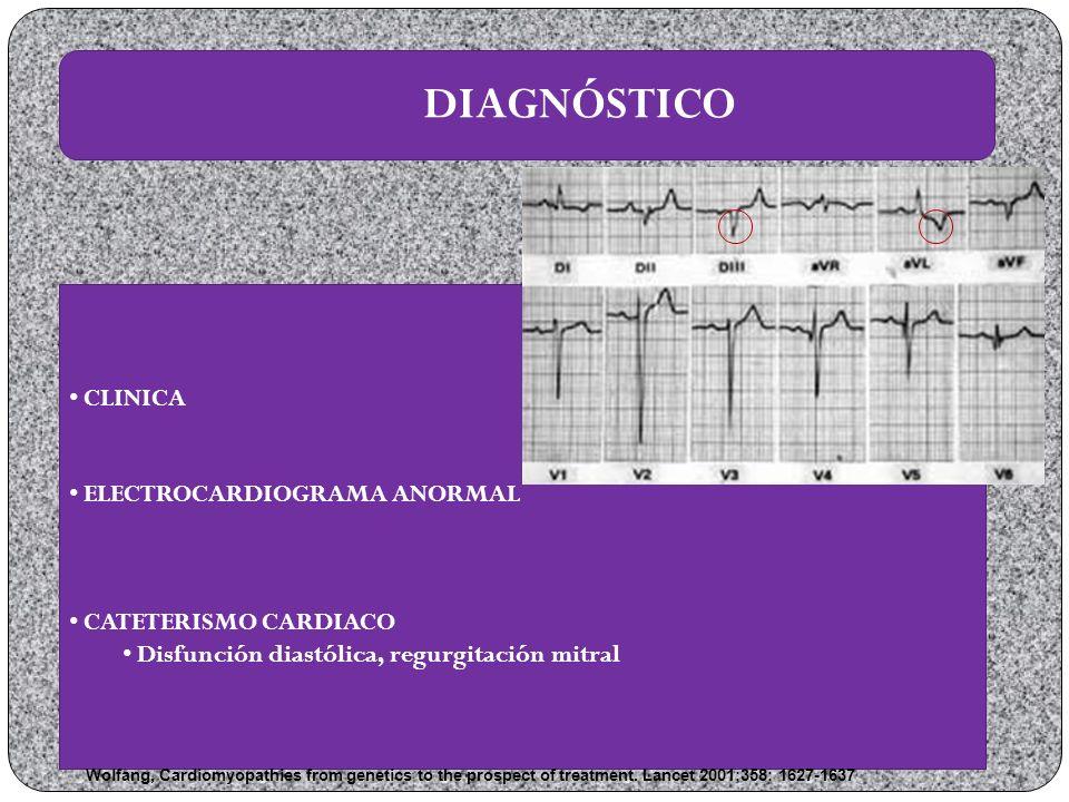 DIAGNÓSTICO CLINICA ELECTROCARDIOGRAMA ANORMAL CATETERISMO CARDIACO