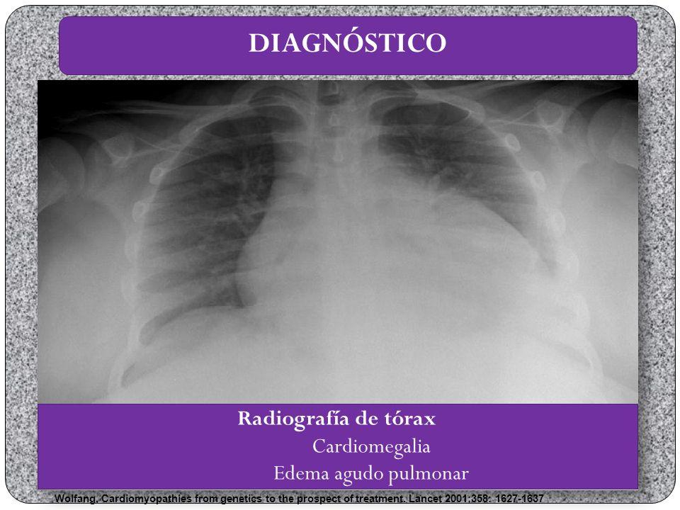 DIAGNÓSTICO Radiografía de tórax Cardiomegalia Edema agudo pulmonar