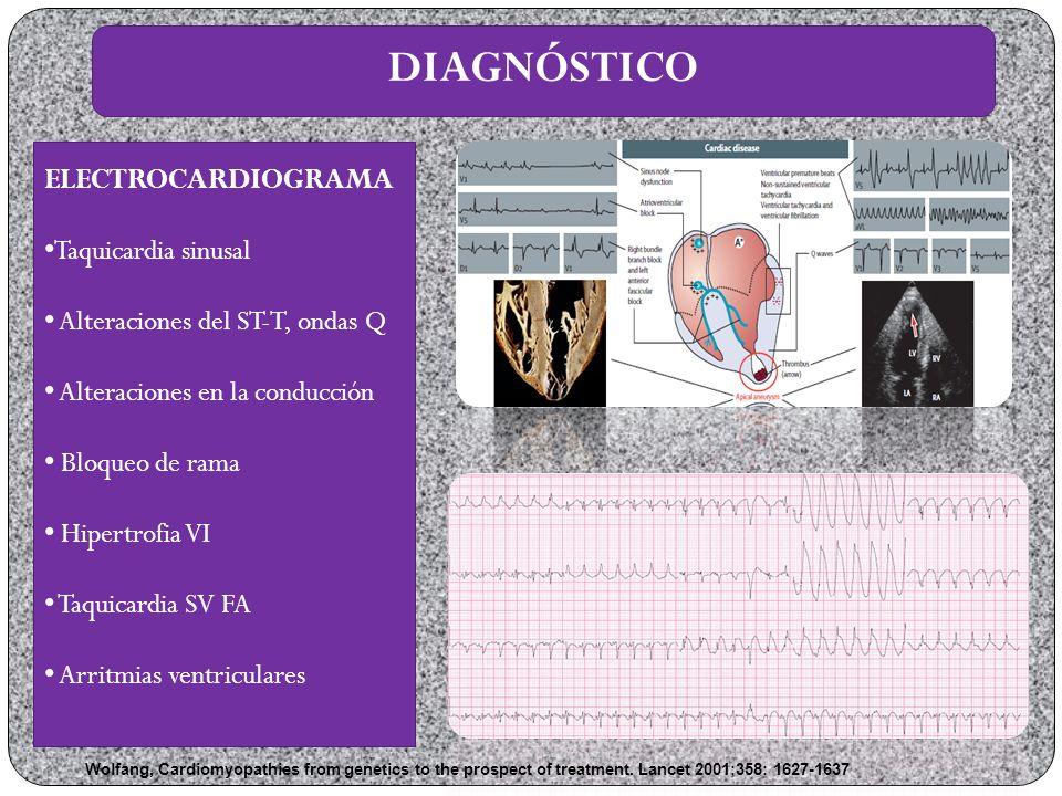 DIAGNÓSTICO ELECTROCARDIOGRAMA Taquicardia sinusal
