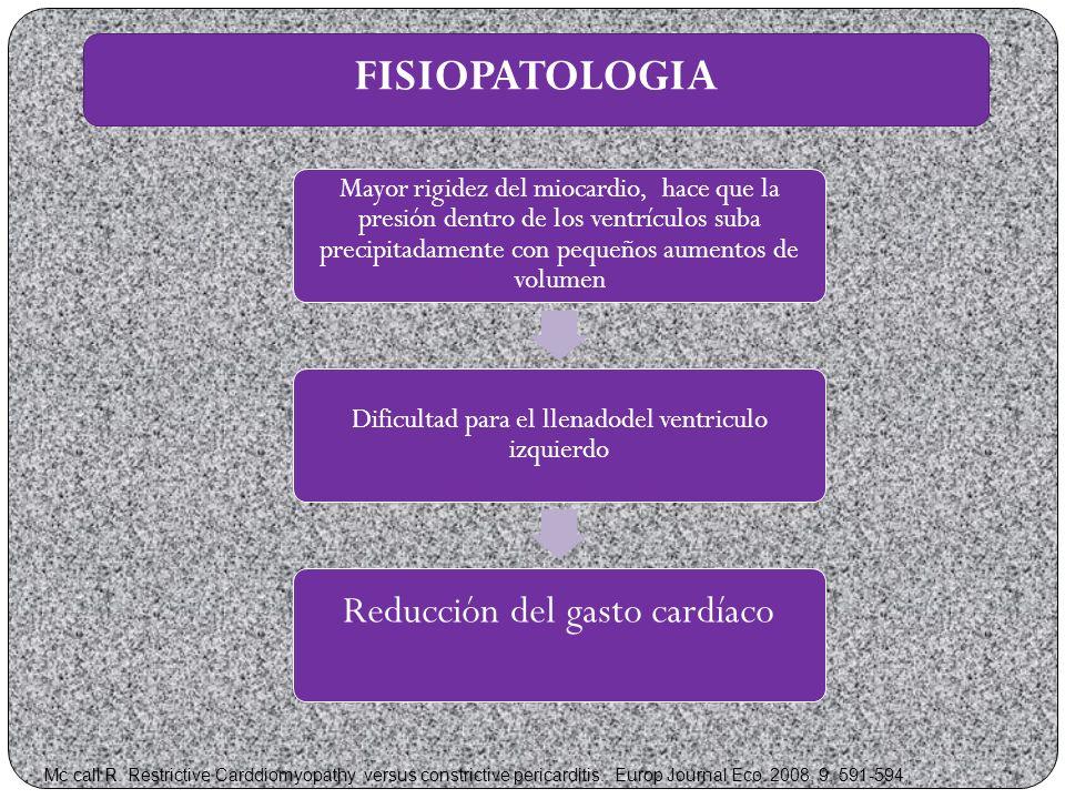 FISIOPATOLOGIA Reducción del gasto cardíaco