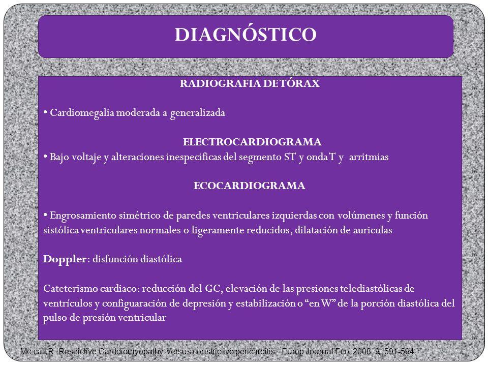 DIAGNÓSTICO RADIOGRAFIA DE TÓRAX Cardiomegalia moderada a generalizada