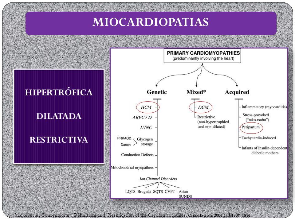 MIOCARDIOPATIAS HIPERTRÓFICA DILATADA RESTRICTIVA
