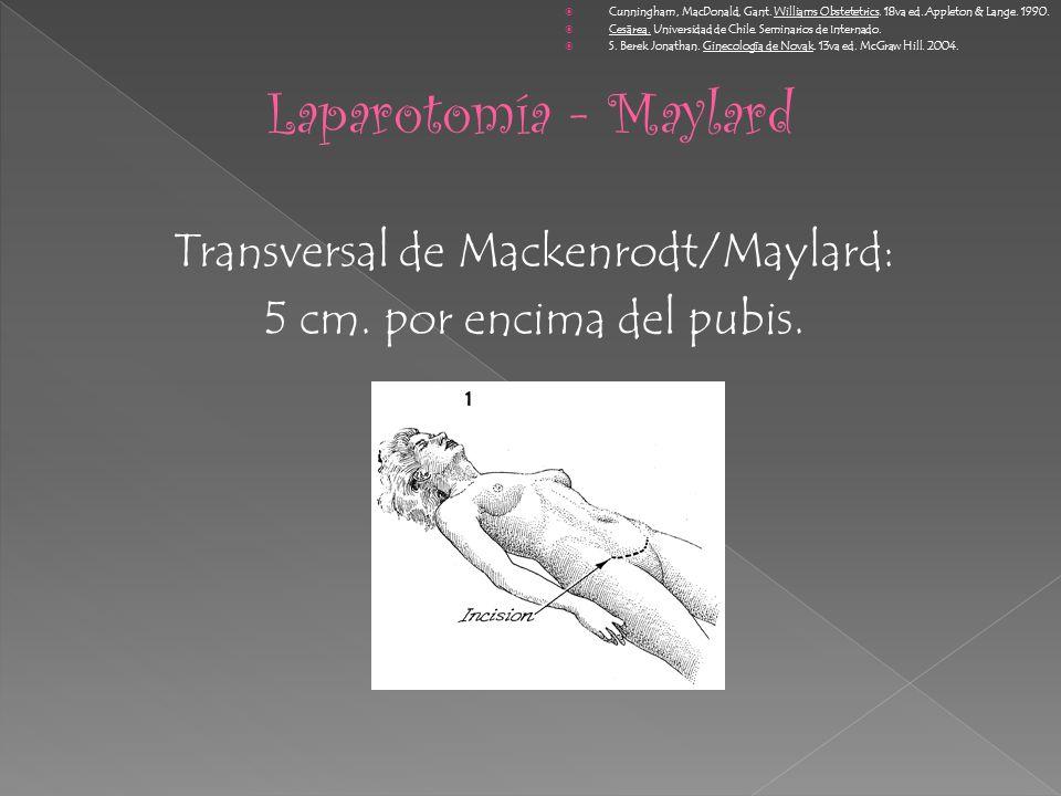Transversal de Mackenrodt/Maylard: