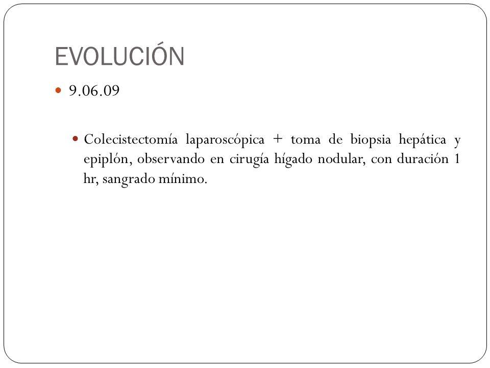 EVOLUCIÓN 9.06.09.
