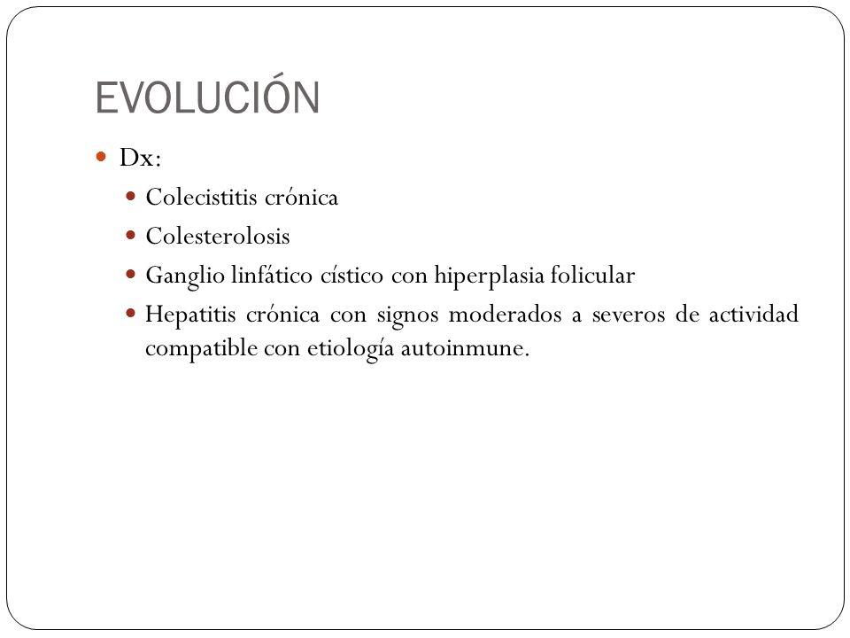EVOLUCIÓN Dx: Colecistitis crónica Colesterolosis