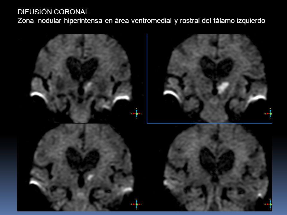 DIFUSIÓN CORONAL Zona nodular hiperintensa en área ventromedial y rostral del tálamo izquierdo