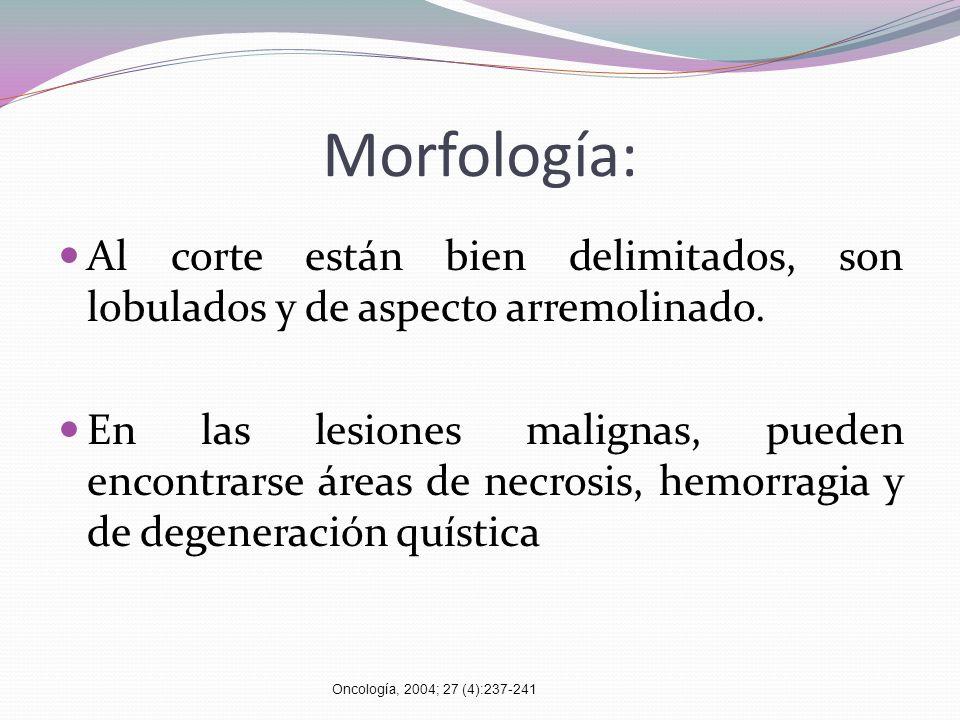 Morfología:Al corte están bien delimitados, son lobulados y de aspecto arremolinado.