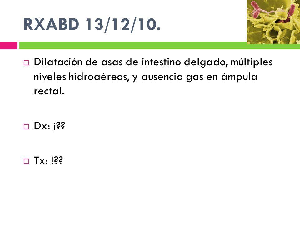 RXABD 13/12/10. Dilatación de asas de intestino delgado, múltiples niveles hidroaéreos, y ausencia gas en ámpula rectal.