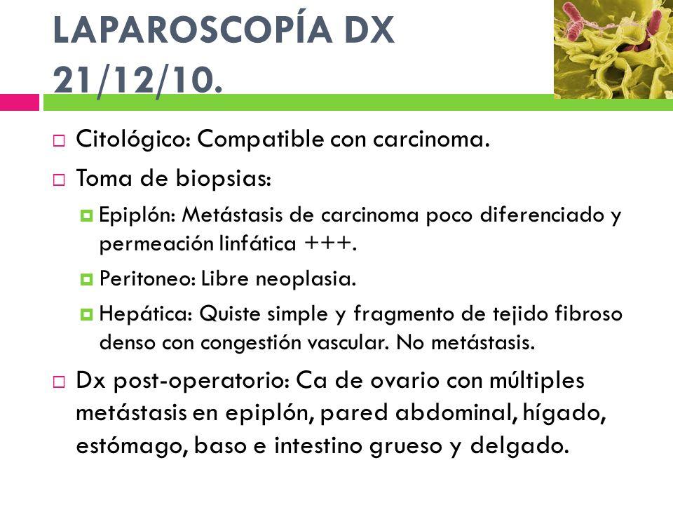 LAPAROSCOPÍA DX 21/12/10. Citológico: Compatible con carcinoma.