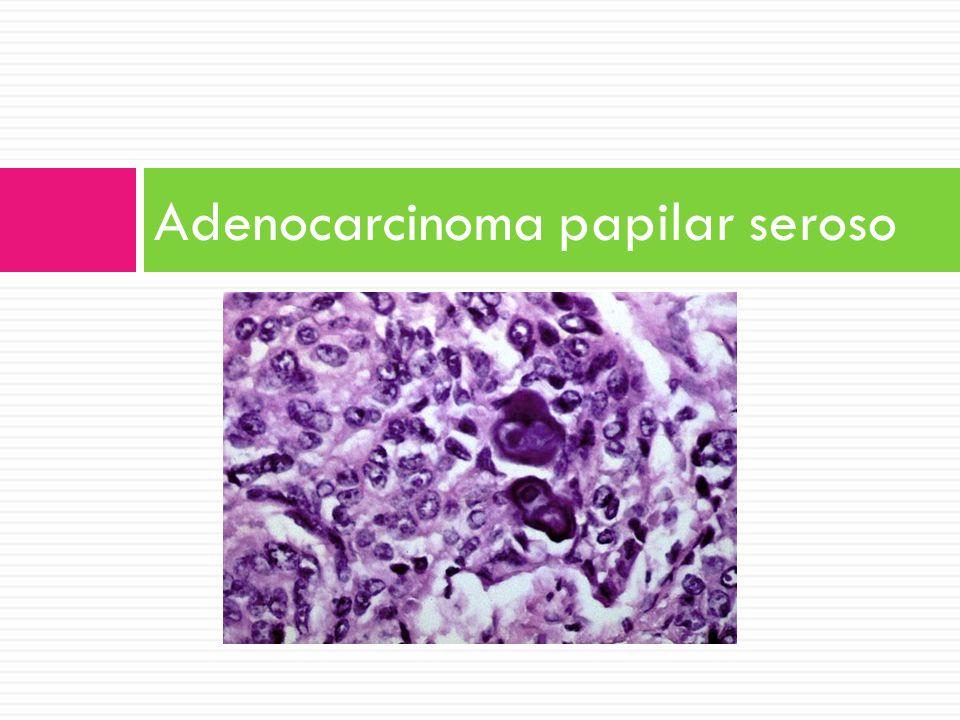 Adenocarcinoma papilar seroso
