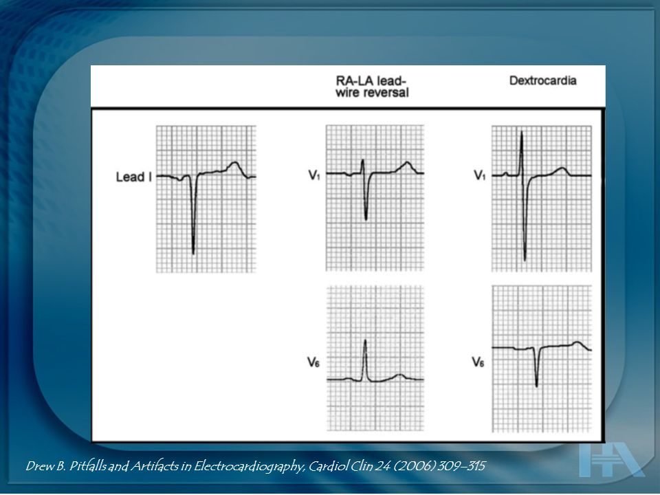 Drew B. Pitfalls and Artifacts in Electrocardiography, Cardiol Clin 24 (2006) 309–315