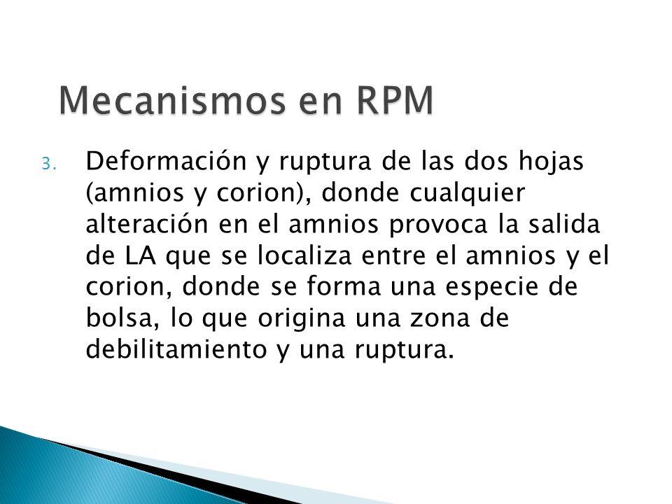 Mecanismos en RPM