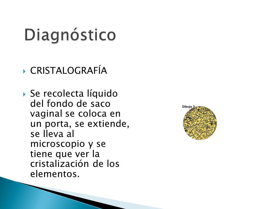 Diagnóstico CRISTALOGRAFÍA