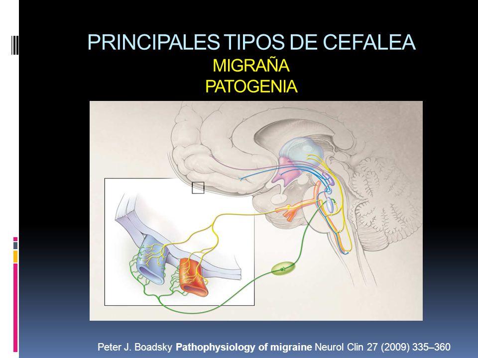 PRINCIPALES TIPOS DE CEFALEA MIGRAÑA PATOGENIA
