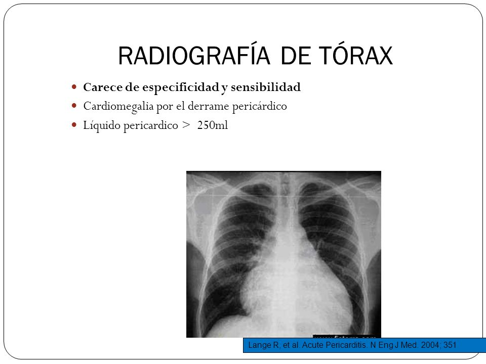 RADIOGRAFÍA DE TÓRAX Carece de especificidad y sensibilidad