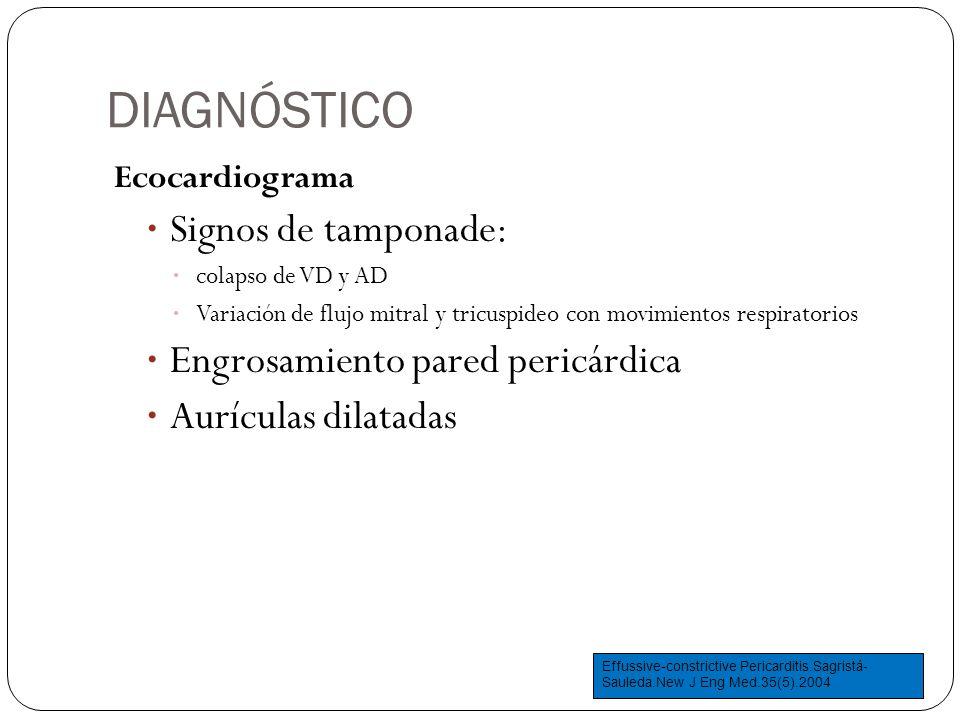 DIAGNÓSTICO Signos de tamponade: Engrosamiento pared pericárdica