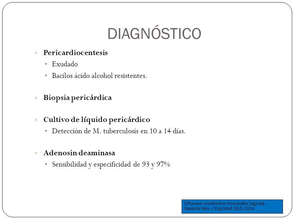 DIAGNÓSTICO Pericardiocentesis Exudado