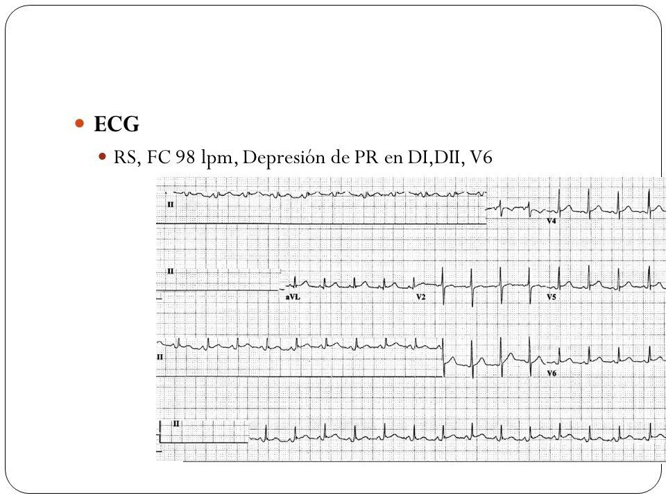 ECG RS, FC 98 lpm, Depresión de PR en DI,DII, V6