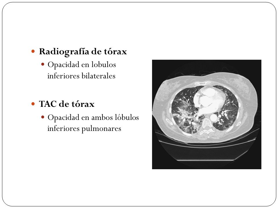 Radiografía de tórax TAC de tórax