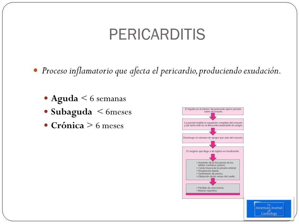 PERICARDITISProceso inflamatorio que afecta el pericardio, produciendo exudación. Aguda < 6 semanas.