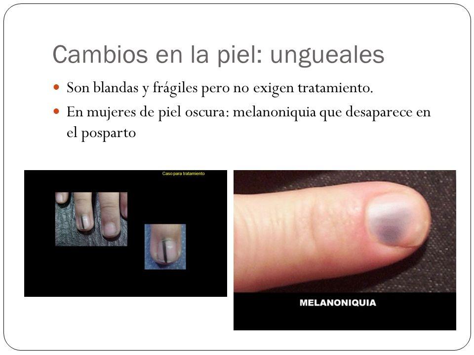 Cambios en la piel: ungueales