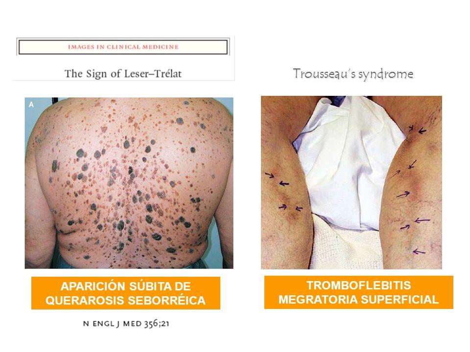 Trousseau's syndrome APARICIÓN SÚBITA DE QUERAROSIS SEBORRÉICA