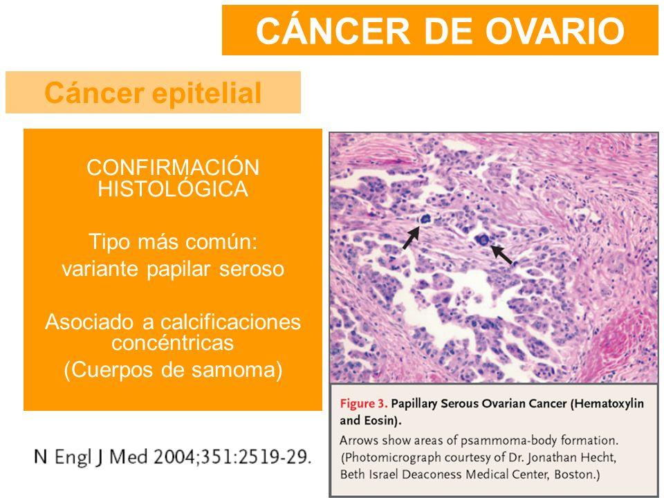 CÁNCER DE OVARIO Cáncer epitelial CONFIRMACIÓN HISTOLÓGICA