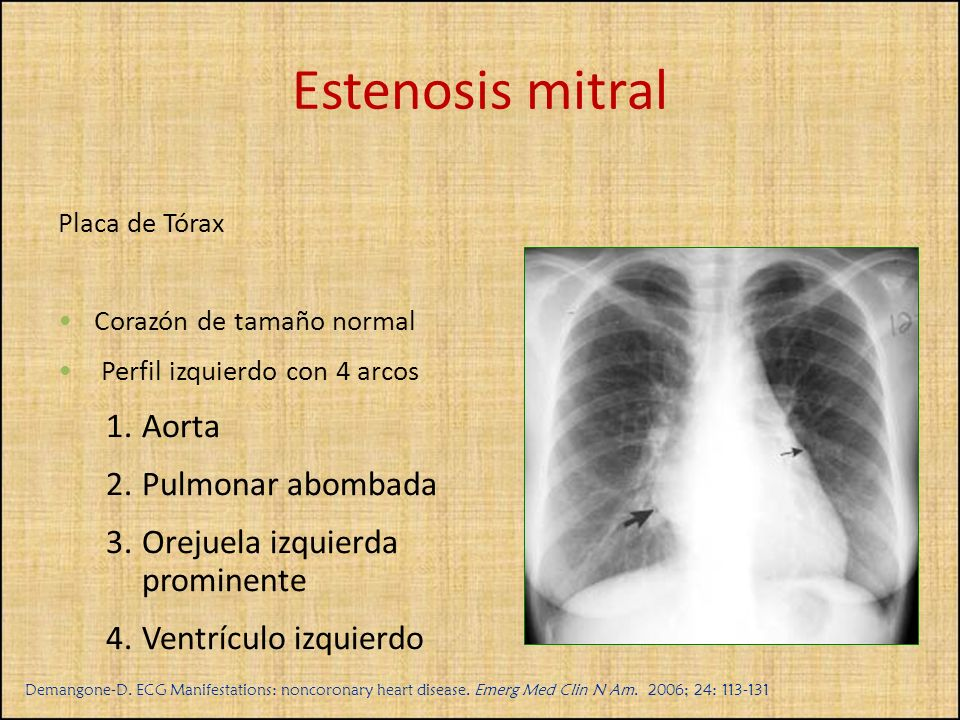 Estenosis mitral Aorta Pulmonar abombada Orejuela izquierda prominente