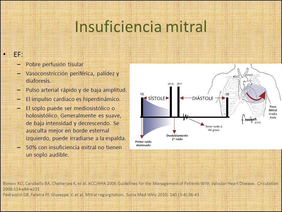 Insuficiencia mitral EF: Pobre perfusión tisular