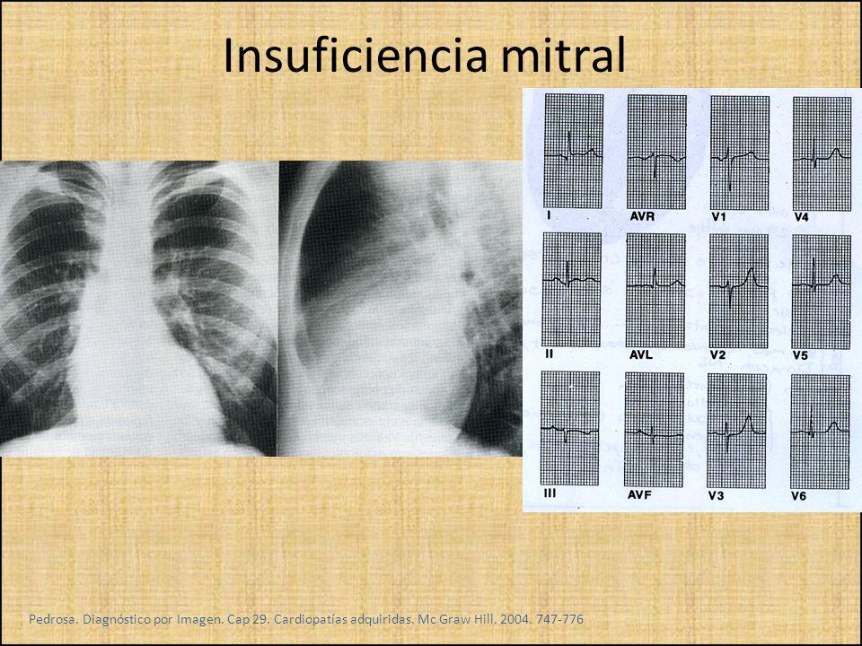 Insuficiencia mitral Pedrosa. Diagnóstico por Imagen.