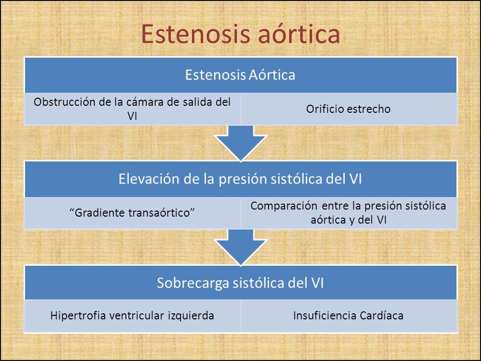 Estenosis aórtica Estenosis Aórtica