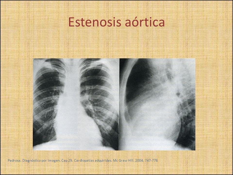 Estenosis aórtica Pedrosa. Diagnóstico por Imagen.
