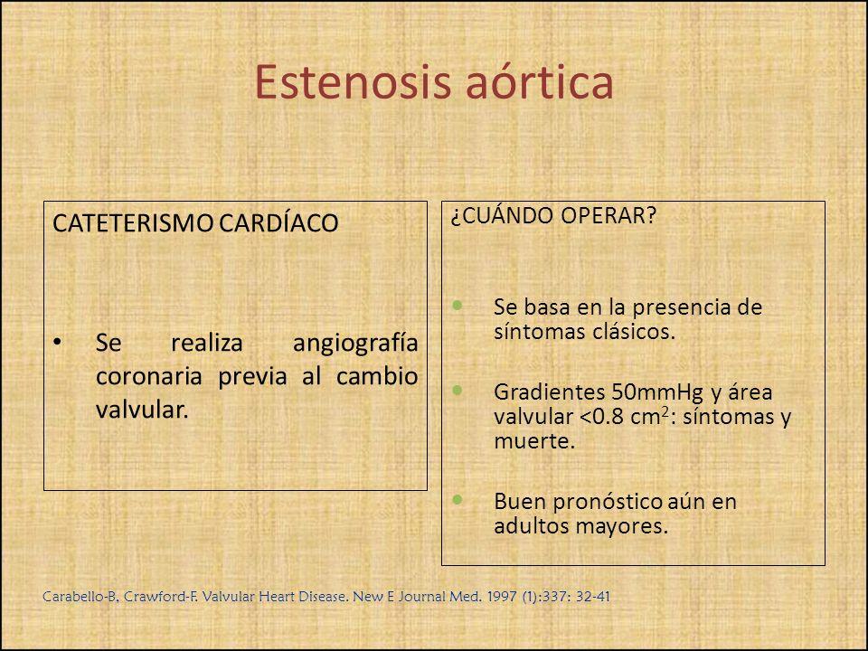 Estenosis aórtica CATETERISMO CARDÍACO