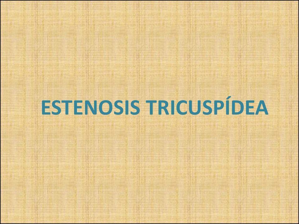 ESTENOSIS TRICUSPÍDEA