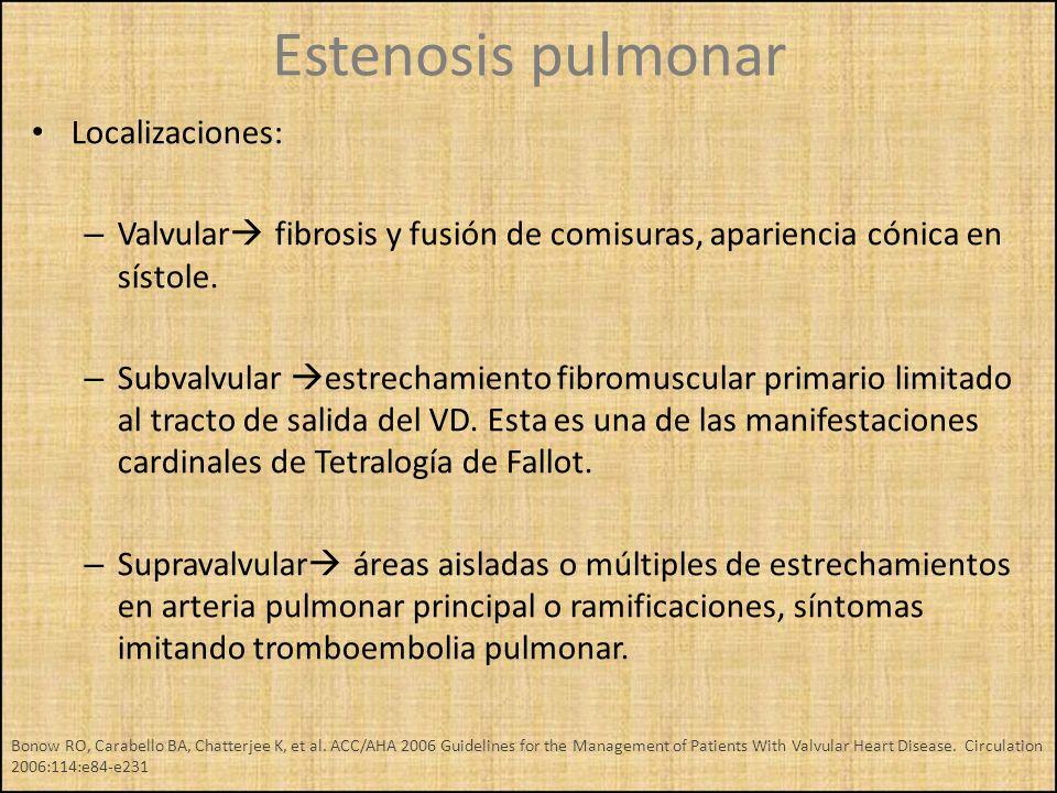 Estenosis pulmonar Localizaciones: