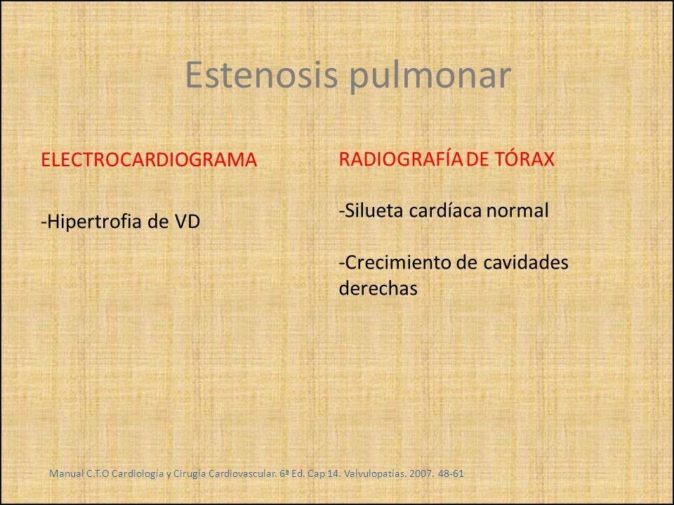 Estenosis pulmonar ELECTROCARDIOGRAMA RADIOGRAFÍA DE TÓRAX
