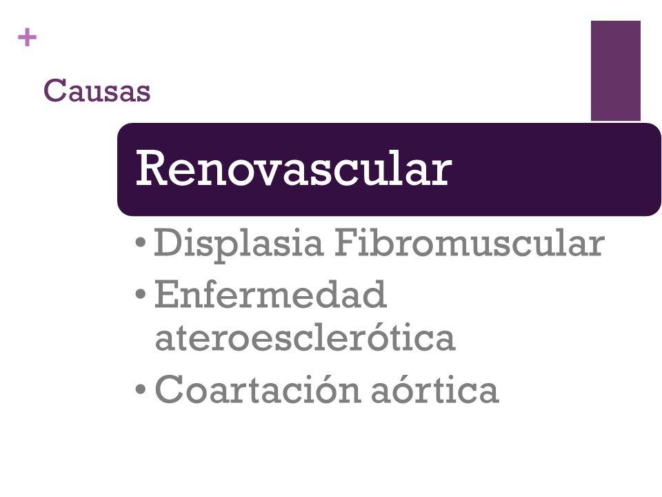 Causas Renovascular Displasia Fibromuscular