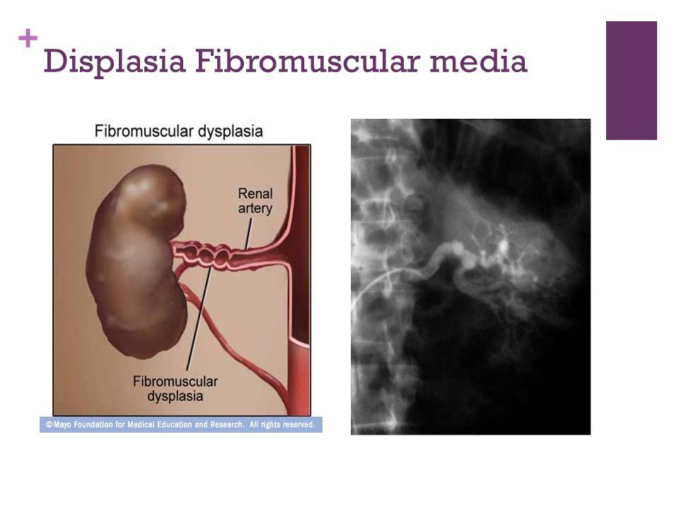 Displasia Fibromuscular media