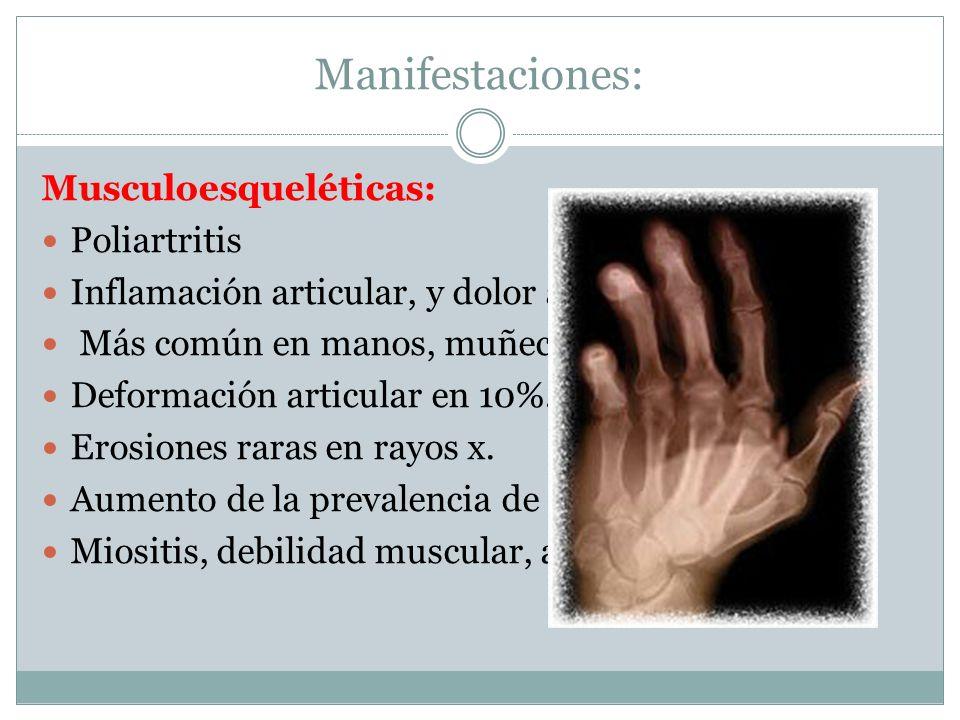 Manifestaciones: Musculoesqueléticas: Poliartritis