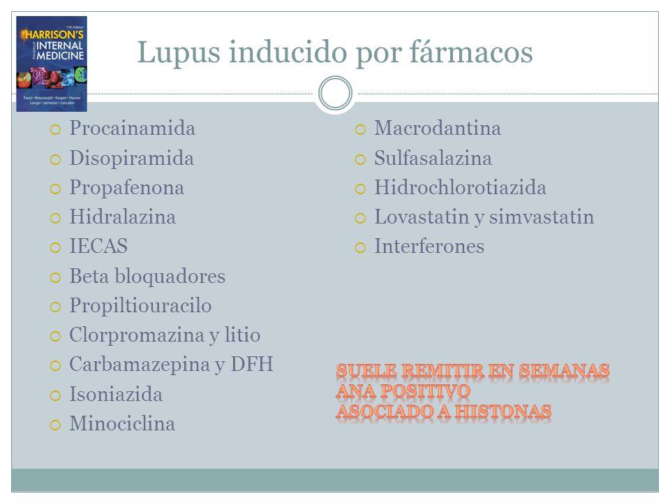 Lupus inducido por fármacos