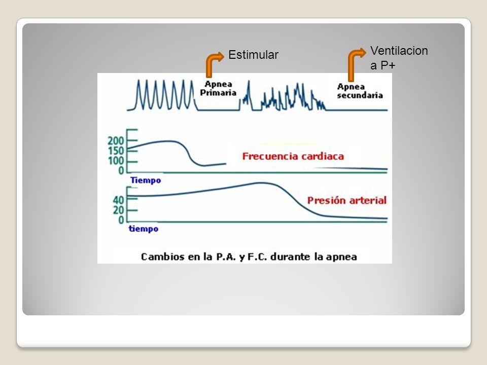 Ventilacion a P+ Estimular