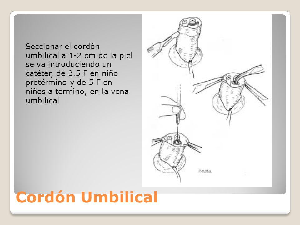 Seccionar el cordón umbilical a 1-2 cm de la piel se va introduciendo un catéter, de 3.5 F en niño pretérmino y de 5 F en niños a término, en la vena umbilical