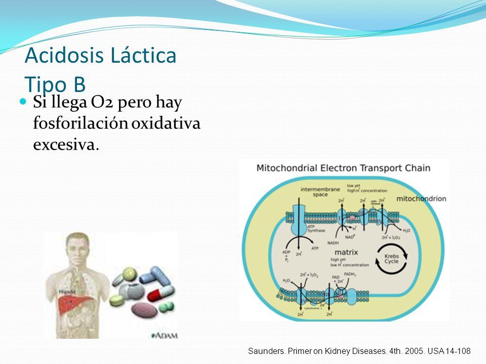Acidosis Láctica Tipo B