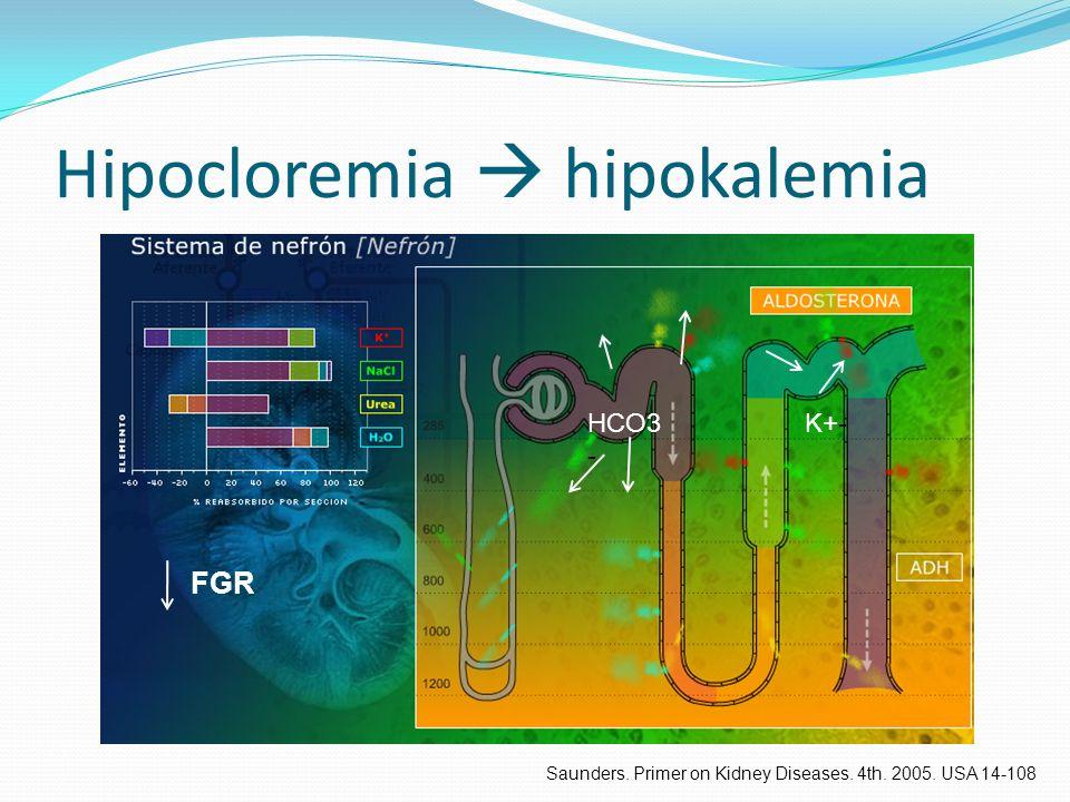 Hipocloremia  hipokalemia