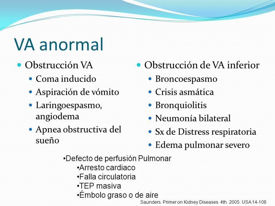 VA anormal Obstrucción VA Obstrucción de VA inferior Coma inducido