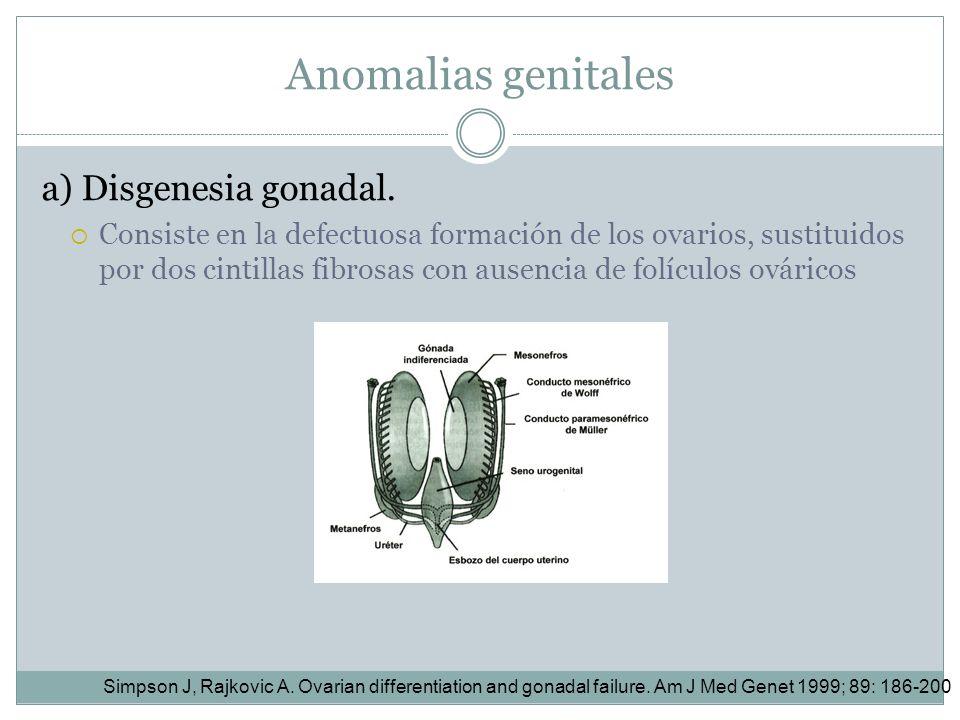 Anomalias genitales a) Disgenesia gonadal.