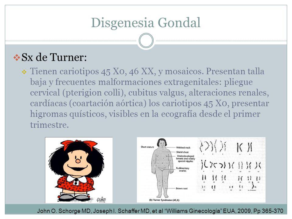Disgenesia Gondal Sx de Turner: