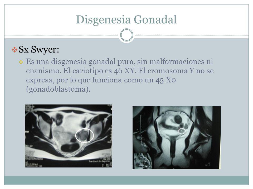 Disgenesia Gonadal Sx Swyer: